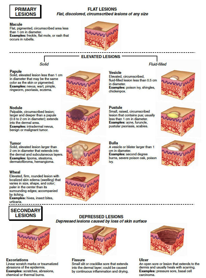 Primary-and-secondary-lesions